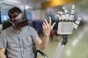 robotic limb - medical prosthetic